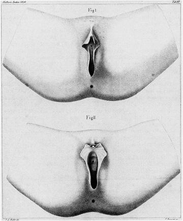 """The """"Hottentot Apron"""" da Johannes Mueller, """"Ueber die ausseren Geschlechtstheile der Buschmaenninnen"""", 1834, in Gilman, 1985, 217"""