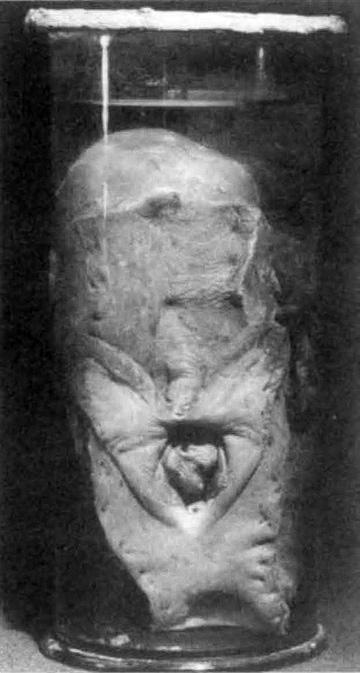 Apparato genitale di Saartjie Baartman sezionato da Cuvier